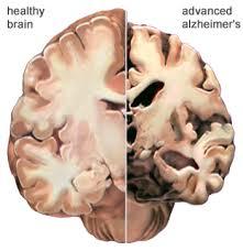 alz_brain